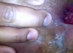 Dilatando el culo de mi amigo